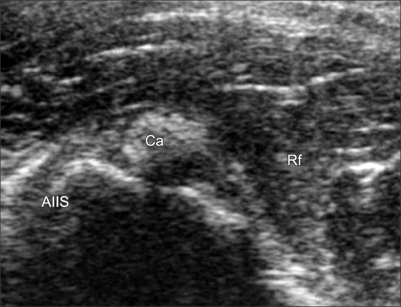 successful treatment of rectus femoris calcification with ultrasound