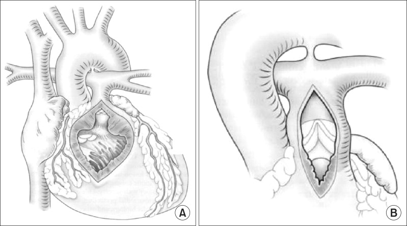 A new pulmonary valve cusp plasty technique markedly